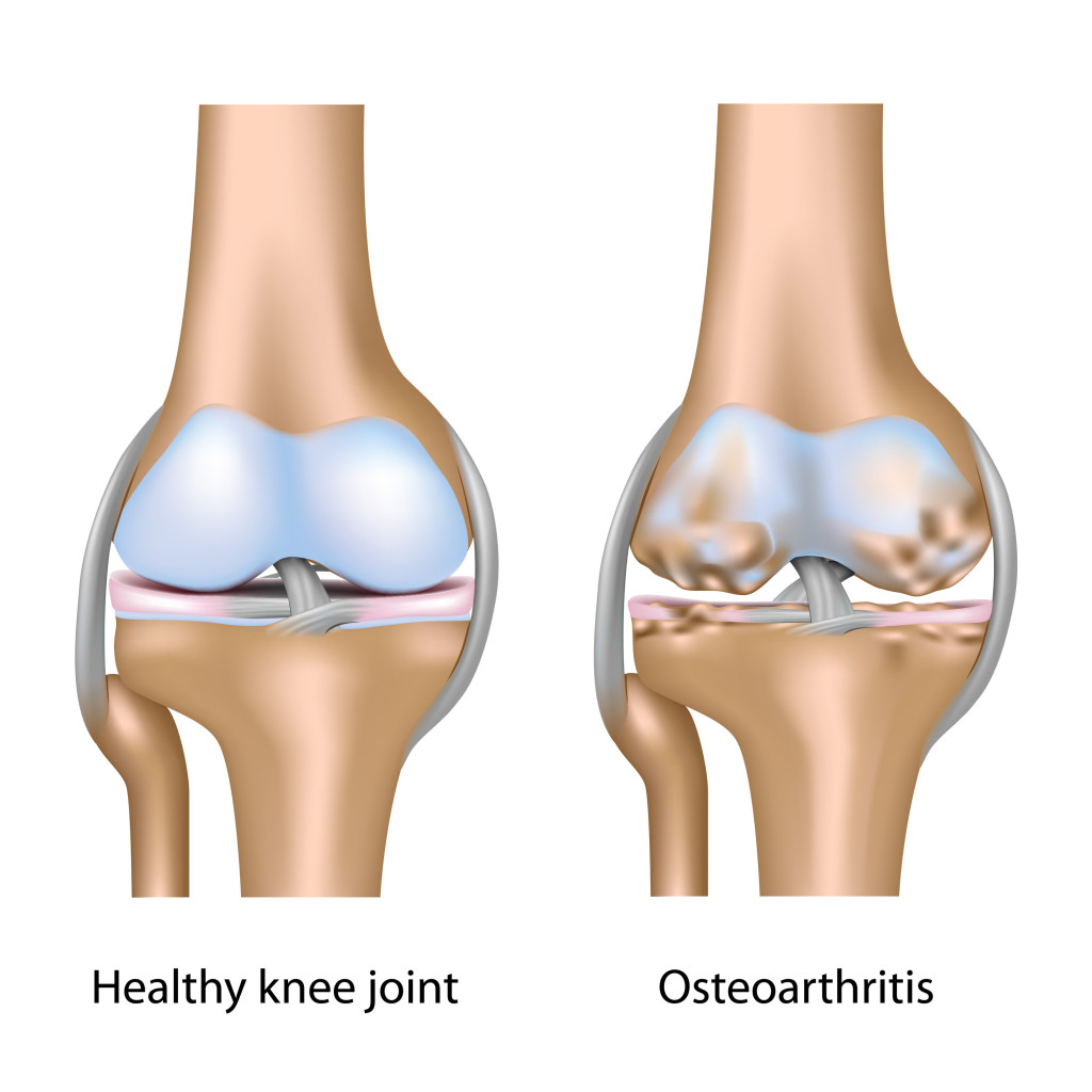 Overview Of Three Common Bone Disorders Osteoarthritis Rheumatoid