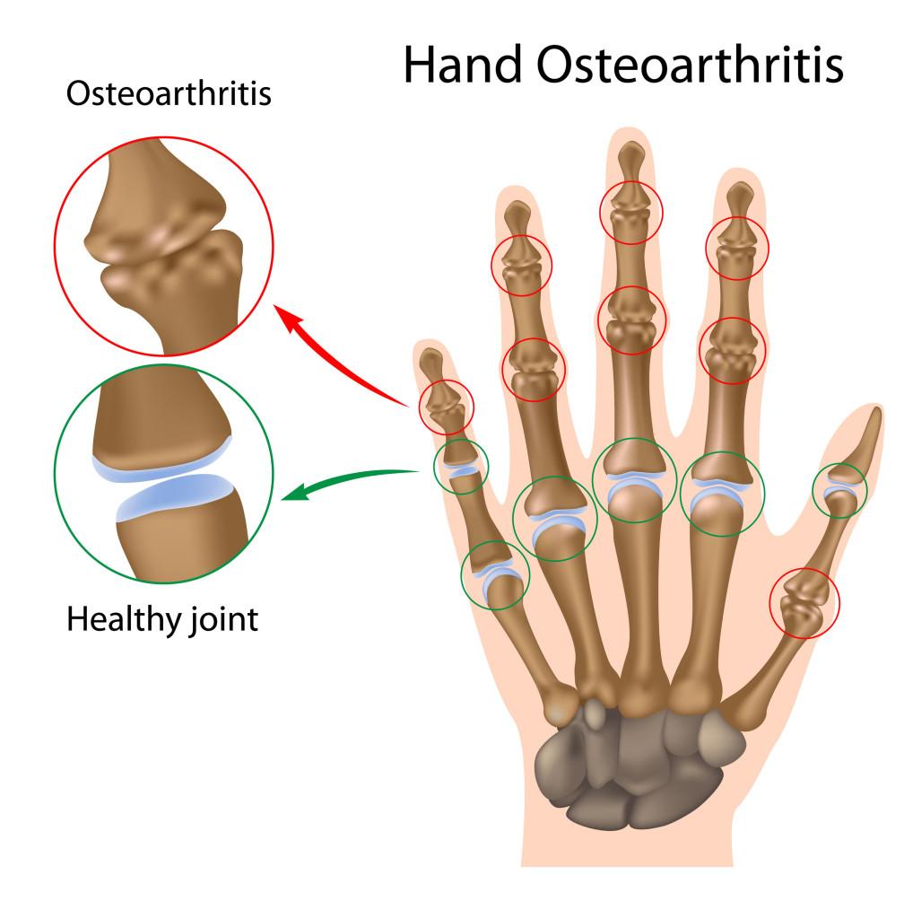 osteoarthritis guide hand osteoarthritis degenerative arthritis of the hand