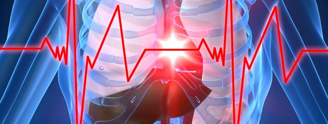 CardiovascularDisorders